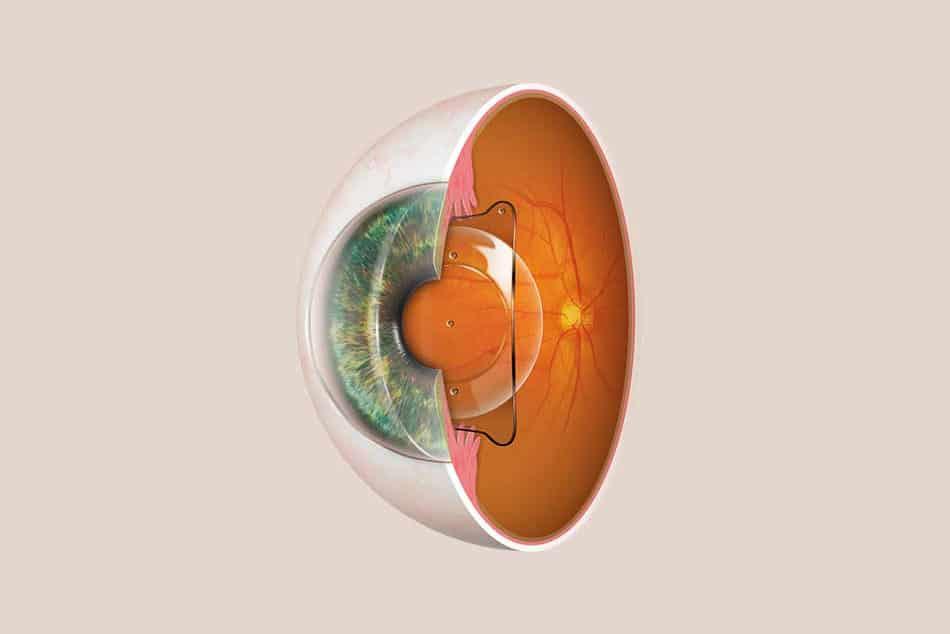 Augenlasern München - Prof. Kook - Alternative zum Augenlasern